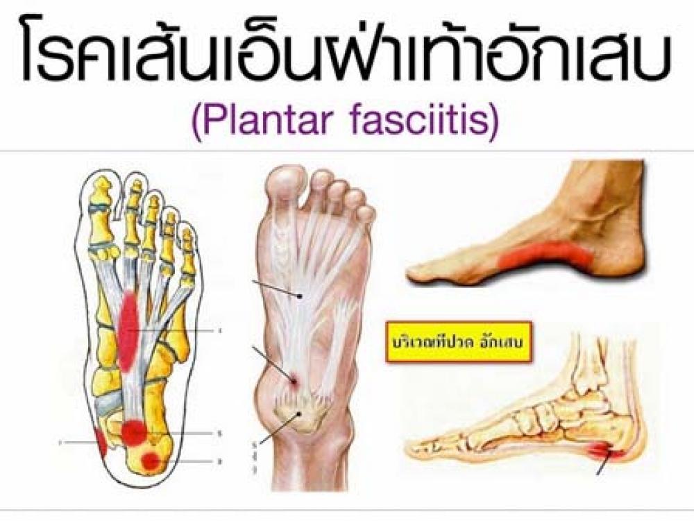 โรครองช้ำ...โรคที่มากับอาการปวดส้นเท้า